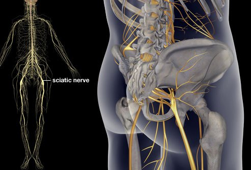 Sciatica: A Pain in the Bum